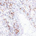 TIGIT antibody