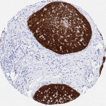 p16 antibody