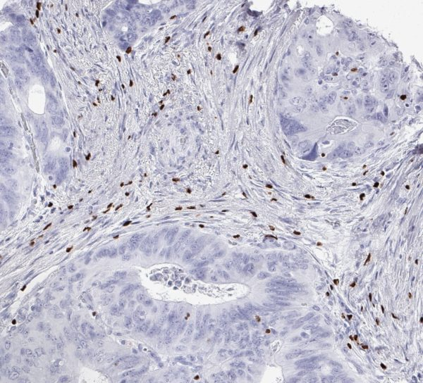 FOXP3 positive regulatory T-cells in the Stroma of a colorectal adenocarcinoma