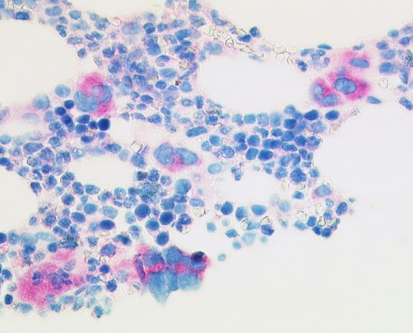 Selective stain of mutated CALR protein in megacaryocytes of essential thrombocythaemia (anti-CALRmut clone CAL2 1:50, Dako Omnis, 200x).