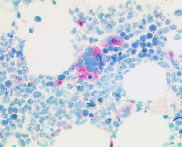 Selective stain of mutated CALR protein in megacaryocytes of early primary myelofibrosis (anti-CALRmut clone CAL2 1:50, Dako Omnis, 400x).